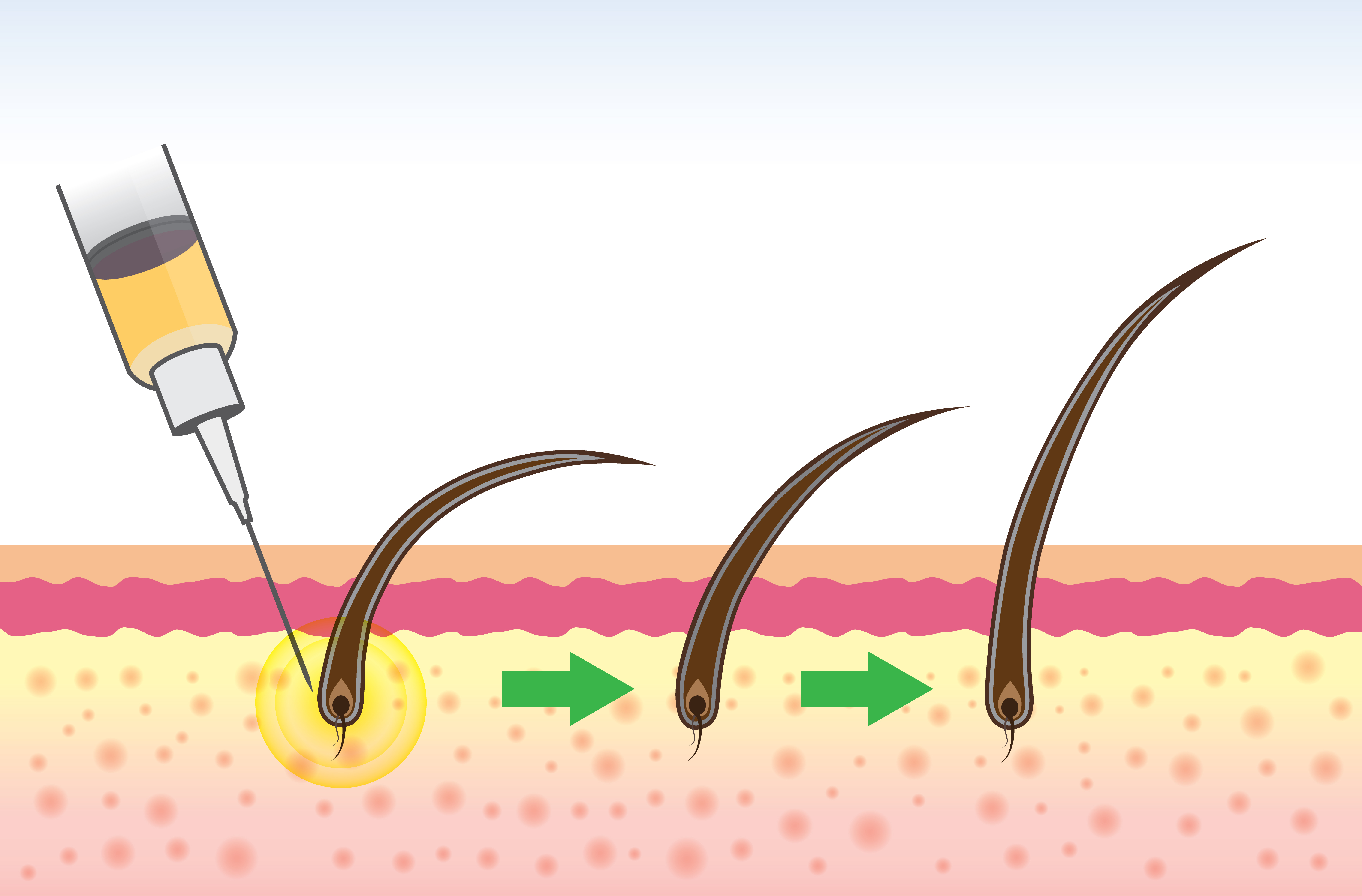 Stem Cell Therapy For Hair Regrowth Nrcoa Scottsdale Vaginal